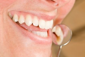 tooth colored fillings in boston restore your smile