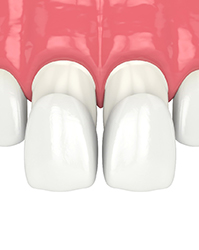 Illustration of two porcelain veneers attached to front teeth
