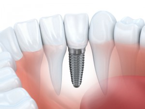 Dental Implant Procedure A Step By Step Guide